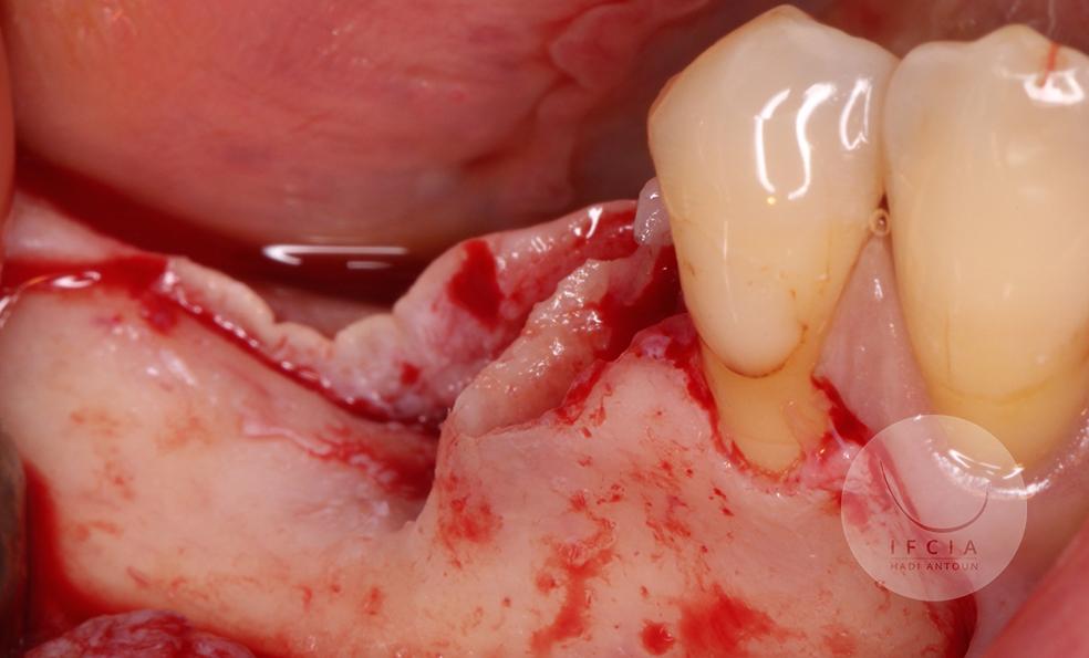 ifcia-hadi-antoun-expert-master-class-les-augmentation-osseuse-3D-1A.jpg