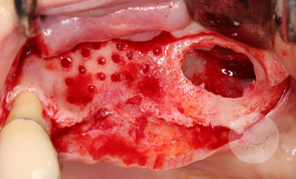 ifcia-hadi-antoun-expert-master-class-les-augmentation-osseuse-3D-3B.jpg