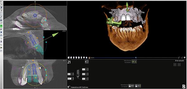 IFCIA Chirurgie Guidée Cas Implant antérieur