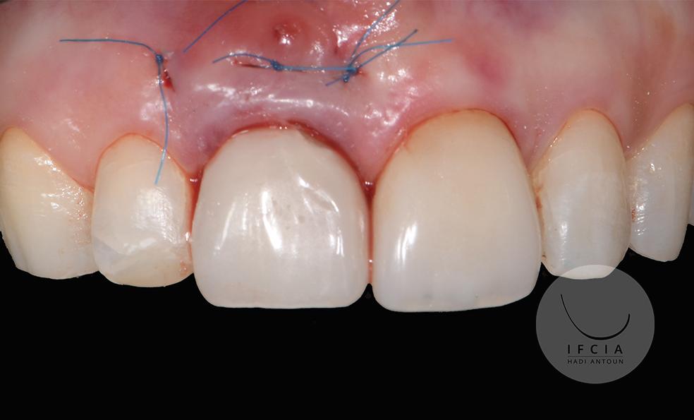 ifcia-hadi-antoun-les-implants-en-secteur-esthetique-2A.jpg