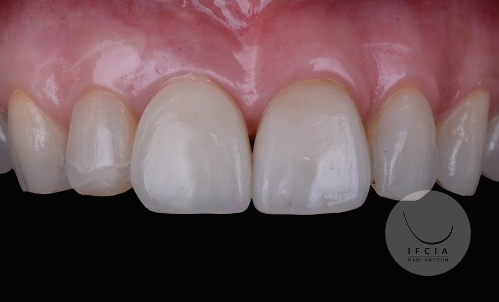 ifcia-hadi-antoun-les-implants-en-secteur-esthetique-2C.jpg