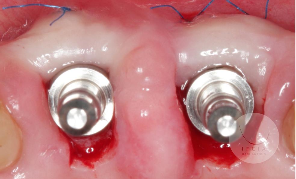 ifcia-hadi-antoun-les-implants-en-secteur-esthetique-3.jpg