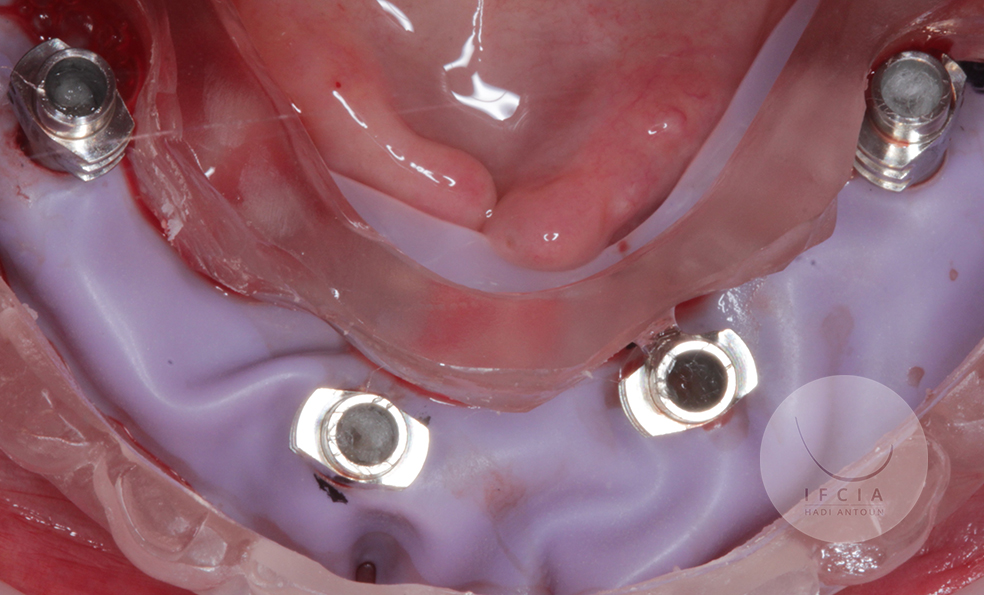 ifcia-hadi-antoun-traitement-de-l-edente-complet-en-implantologie-3-9.jpg