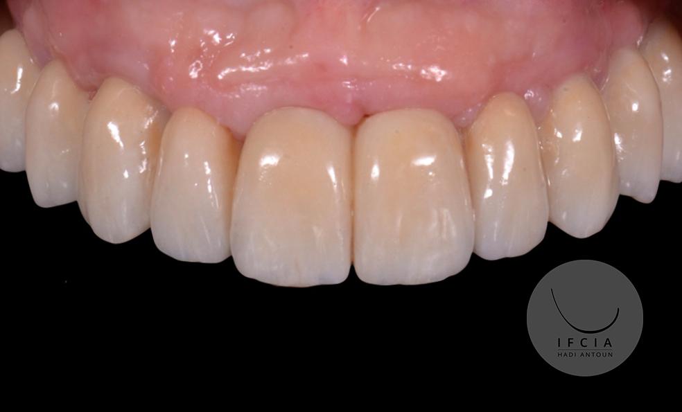ifcia-hadi-antoun-traitement-de-l-edente-complet-en-implantologie-6A-9.jpg
