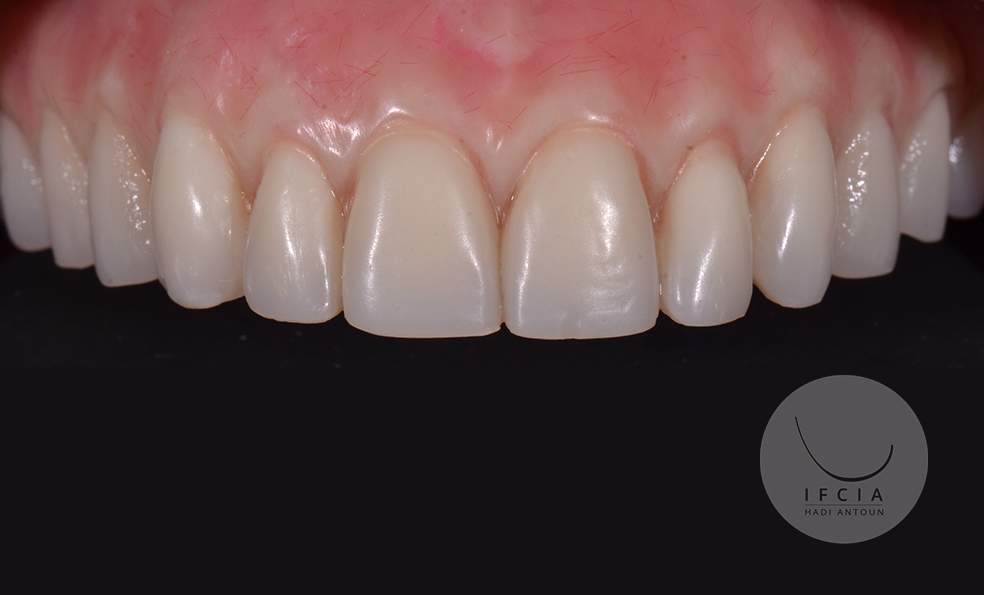 ifcia-hadi-antoun-traitement-de-l-edente-complet-en-implantologie-8-9.jpg