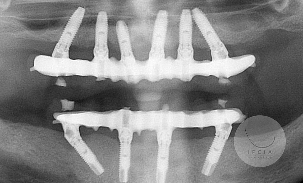 ifcia-hadi-antoun-traitement-de-l-edente-complet-en-implantologie-9-9.jpg