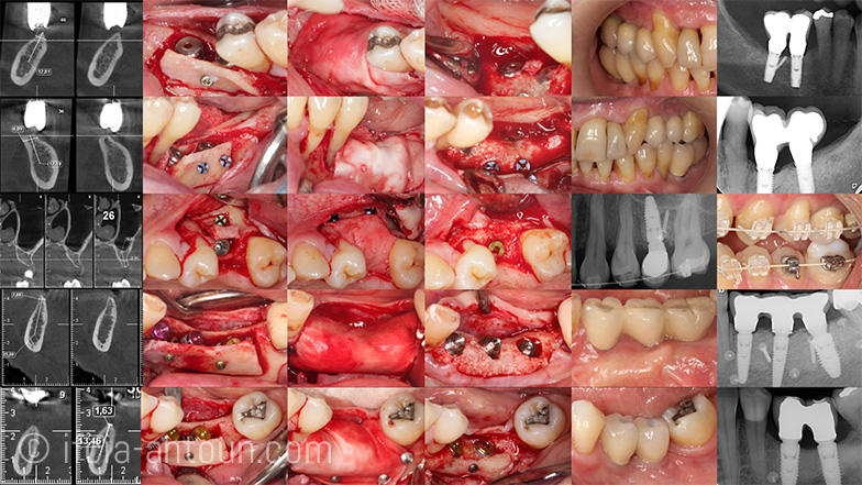 ifcia-antoun-2018_Osteology_V07_FINAL.029.jpg